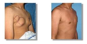 chirurgie gynécomastie