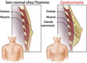 gynecomastie-anatomie