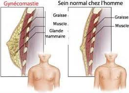 schéma de gynécomastie et ses symptômes